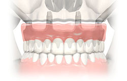 full jaw implant dental center
