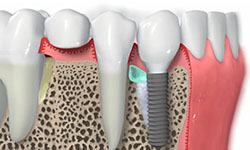 dental clinic tooth implants