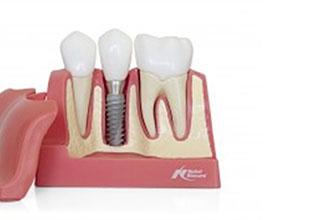 thailand dental implant center