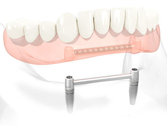 full jaw tooth implants