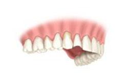 gum recesssion