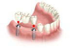 teeth implant thailand