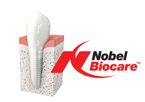 nobe biocare implant center
