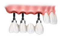 tooth implants thailand