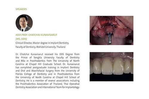 dentists bangkok